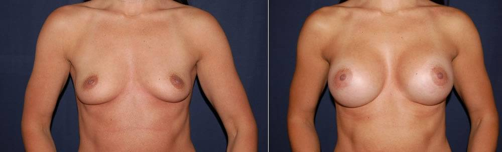 183 Breast Augmentation Before and After Photo