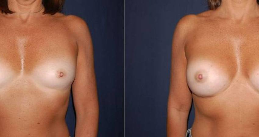 180 Breast Augmentation Before and After Photo