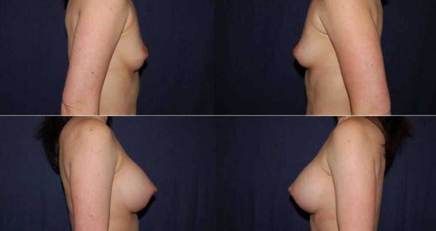 175 Breast Augmentation Before and After Photo