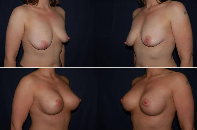 68 Breast Lift with Implants