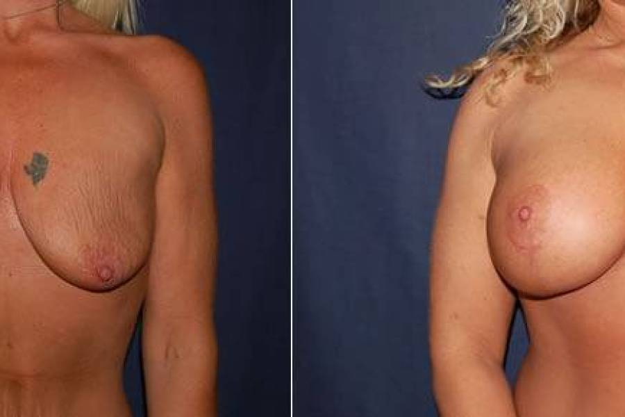 42 Breast Lift with Implant