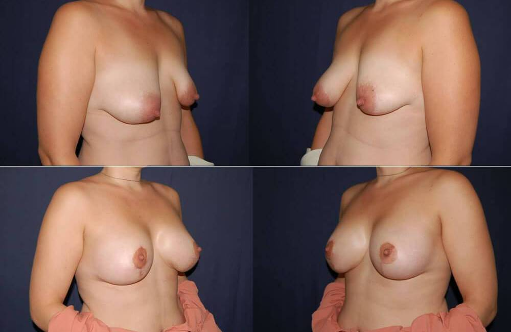 38 Breast Lift with Implants