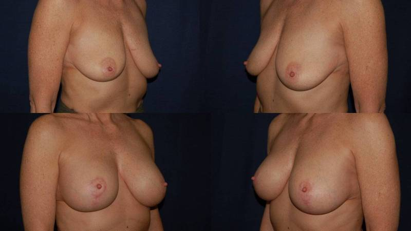 55 Breast Lift with Implants