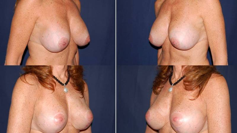 49 Breast Lift with Implants