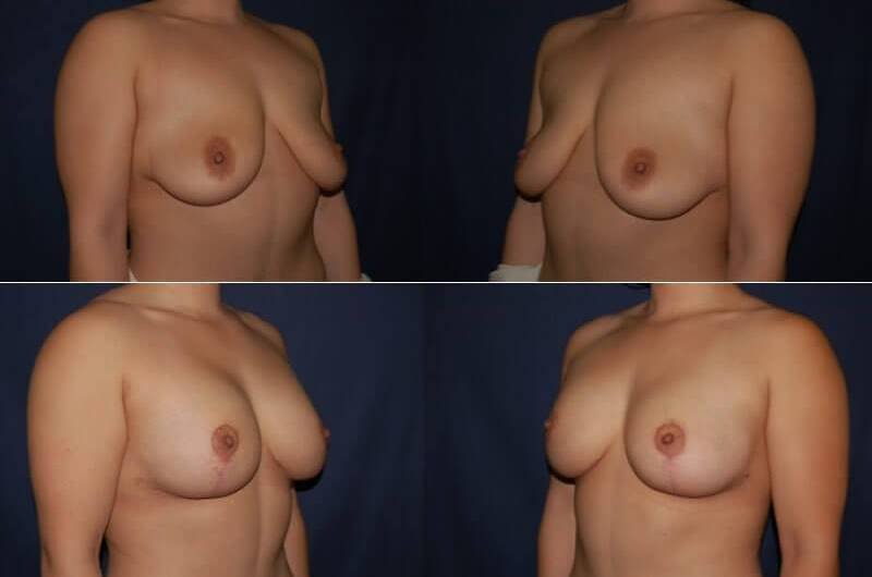 47 Breast Lift with Implant