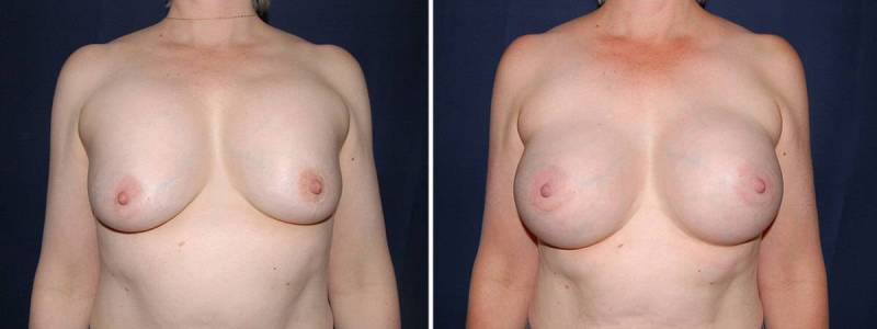 106 Secondary Breast Surgery Before and After Photo