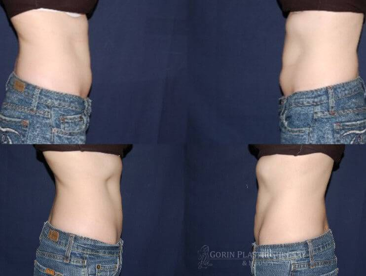 Liposuction before and after 12