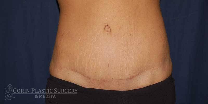 Tummy tuck before and after 80