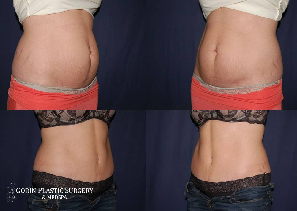 Tummy tuck before and after 50