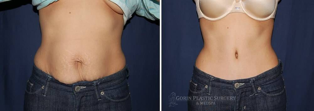 Tummy tuck before and after 49
