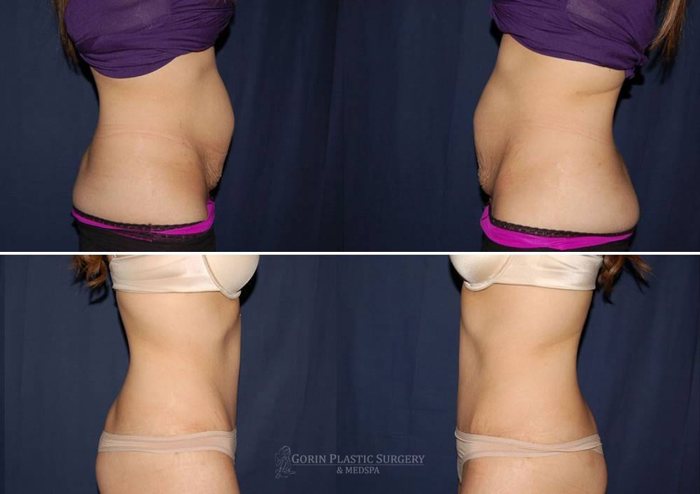 Tummy tuck before and after 47