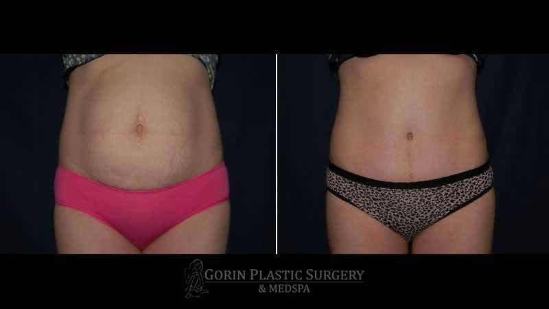 Tummy tuck before and after 45