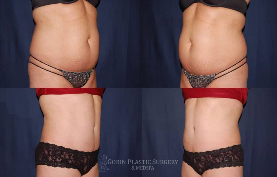 Tummy tuck before and after 39