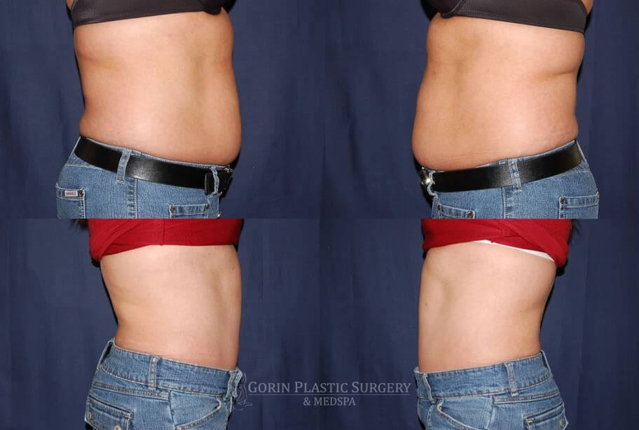 Tummy tuck before and after 37