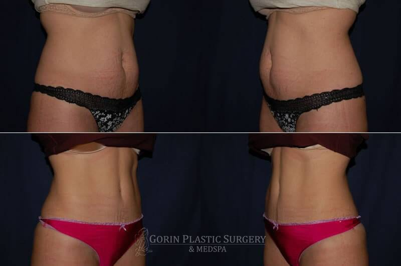 Tummy tuck before and after 34
