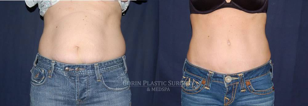 Tummy tuck before and after 26