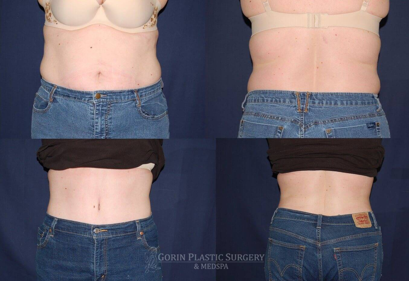 Tummy tuck before and after 10