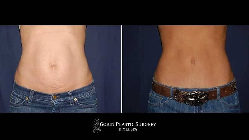 Tummy tuck before and after 69