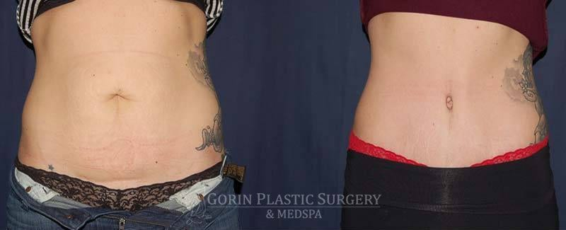 tummy tuck before and after 74