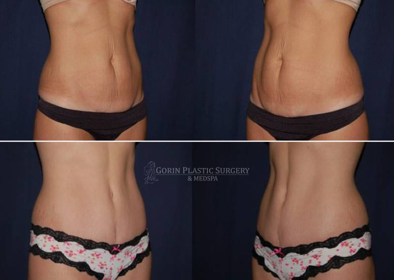 Tummy tuck before and after 62