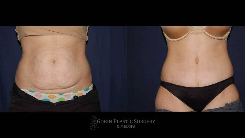 Tummy tuck before and after 60