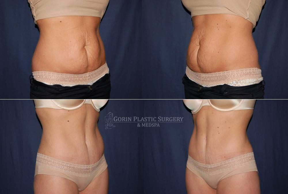 Tummy tuck before and after 563