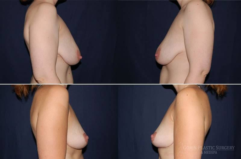 breast lift with augmentation before and after side view 15