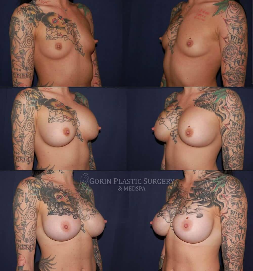 Breast augmentation before and after oblique view 30