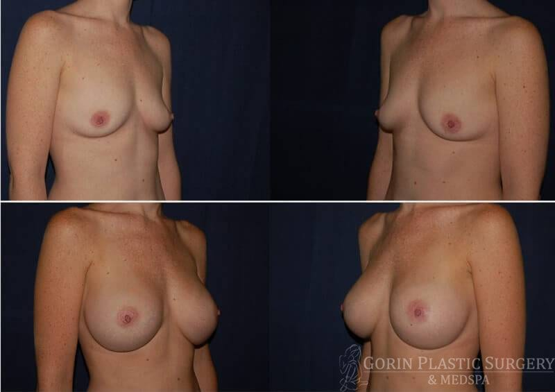breast augmentation before and after oblique view 20