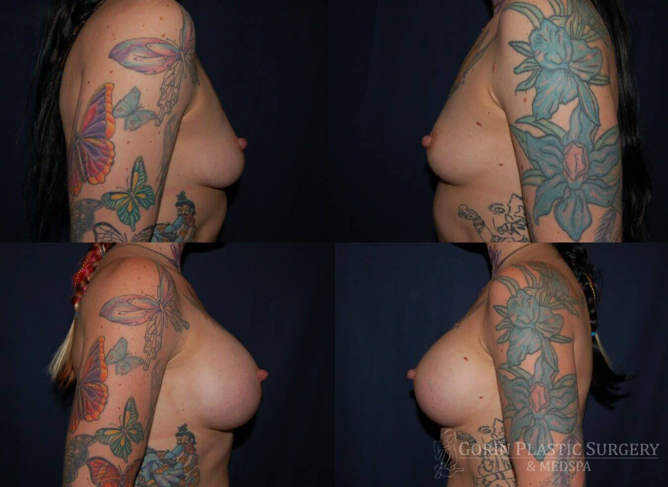 breast augmentation before and after side view 19