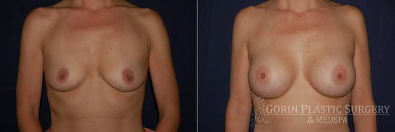breast augmentation before and after front view 16