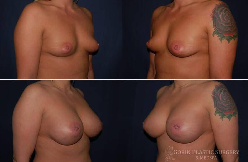 breast augmentation before and after oblique view 11