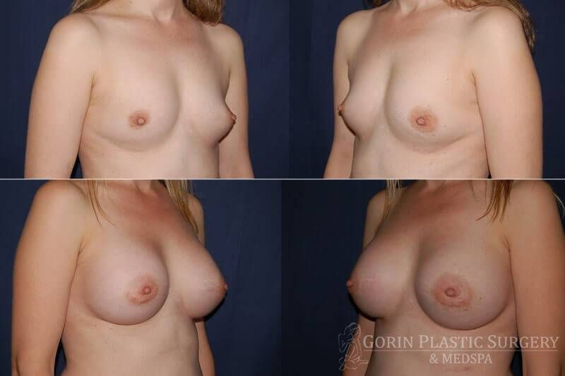 breast augmentation before and after oblique view 35