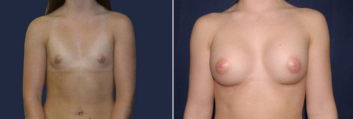 breast augmentation before and after frontal view 9