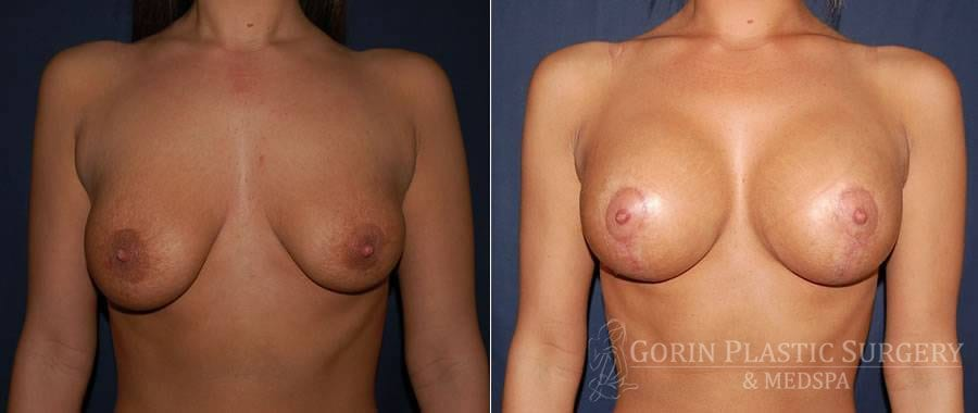 breast augmentation with lift before and after front view 5