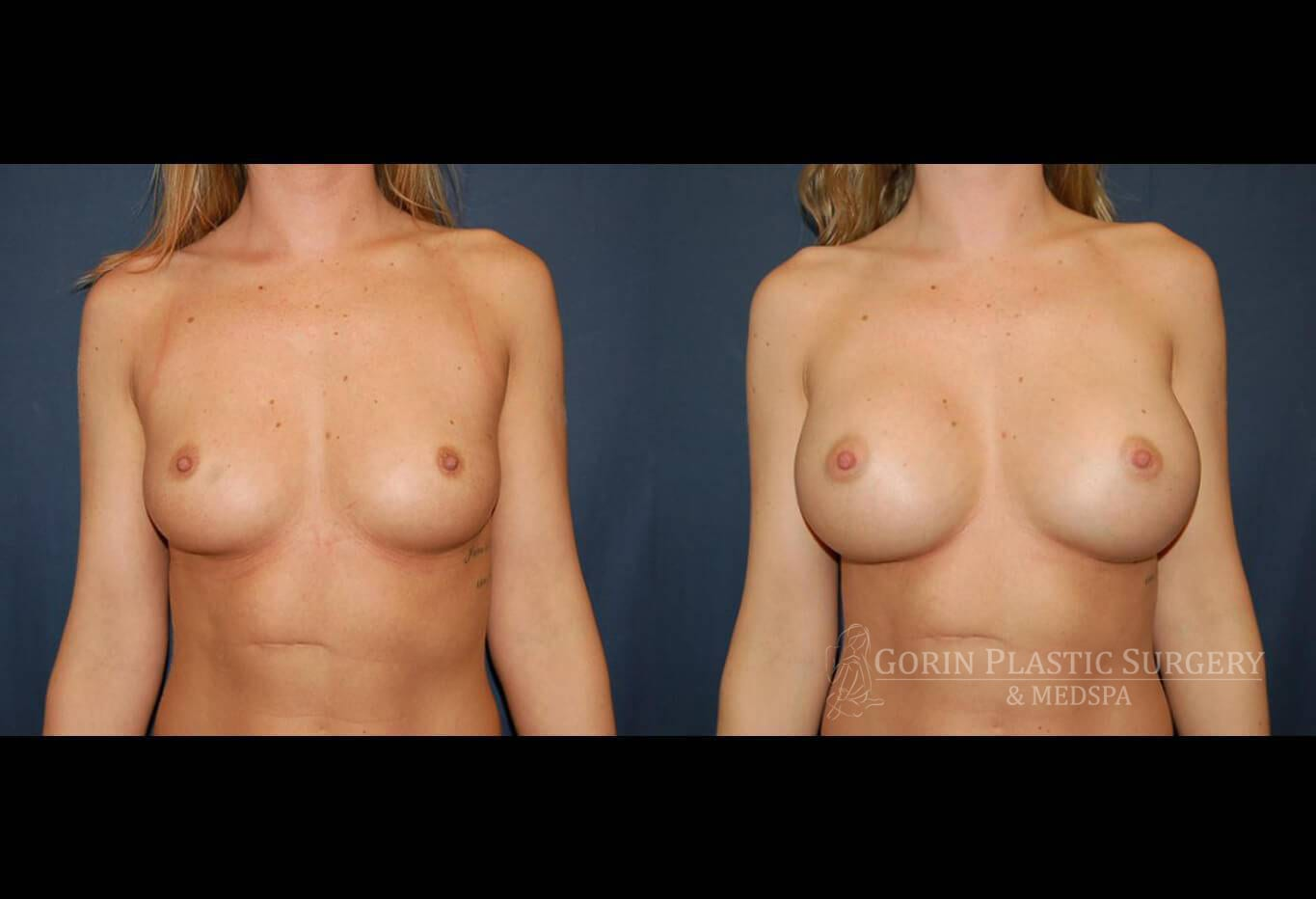 breast aug before and after front view