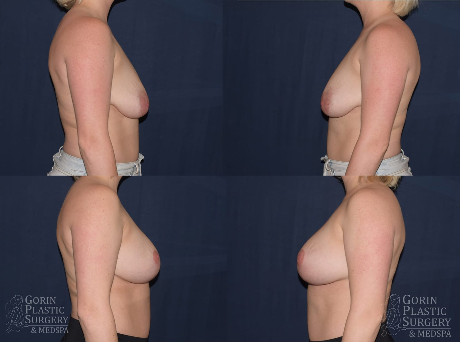 before after mastopexy breast augmentation at dr gorin plastic surgery side view jan 2020