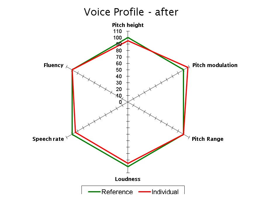 Voice Profile