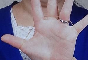 【ソレダメ】手がむくんで指輪が外せない時の外し方!輪ゴムを使う