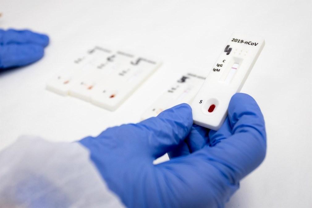 test covid 19 coronavirus