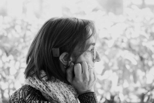 Vicky tiene una discapacidad auditiva provocada por el síndrome de Treacher Collins