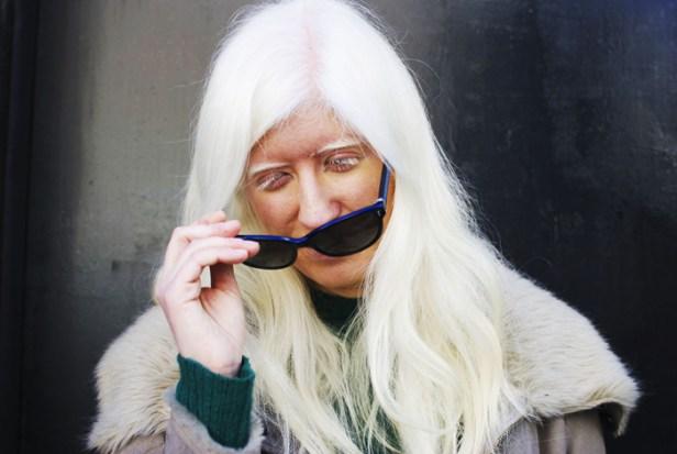 Patty es albina y tiene un 17% de visión