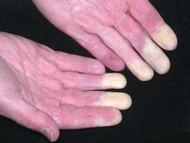 Remde naturel pour soigner la maladie de Raynaud  Grands
