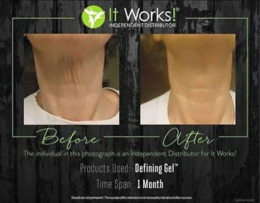 What Is The Difference Between Stretch Mark Cream And Defining Gel