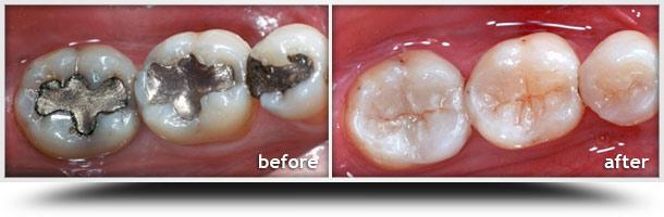 Atlanta Cosmetic Dentist  Dental Inlay Inlays and Onlays  Great Atlanta Smiles