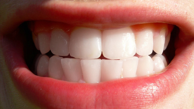 Practice great dental cleanliness