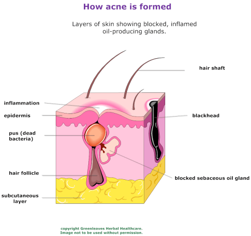small resolution of acne diagram copy facebook twitter google plus share