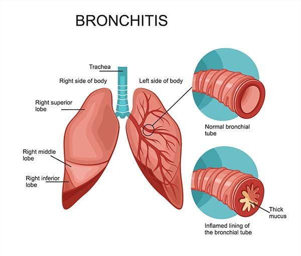 Bronchite Asmatica Cause Sintomi E Rimedi Greenmeit