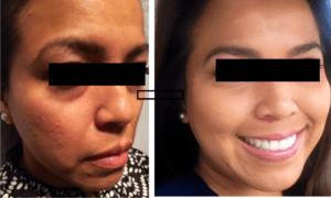 Microneedling results in Greenville, SC