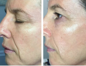Greenville Microneedling Results